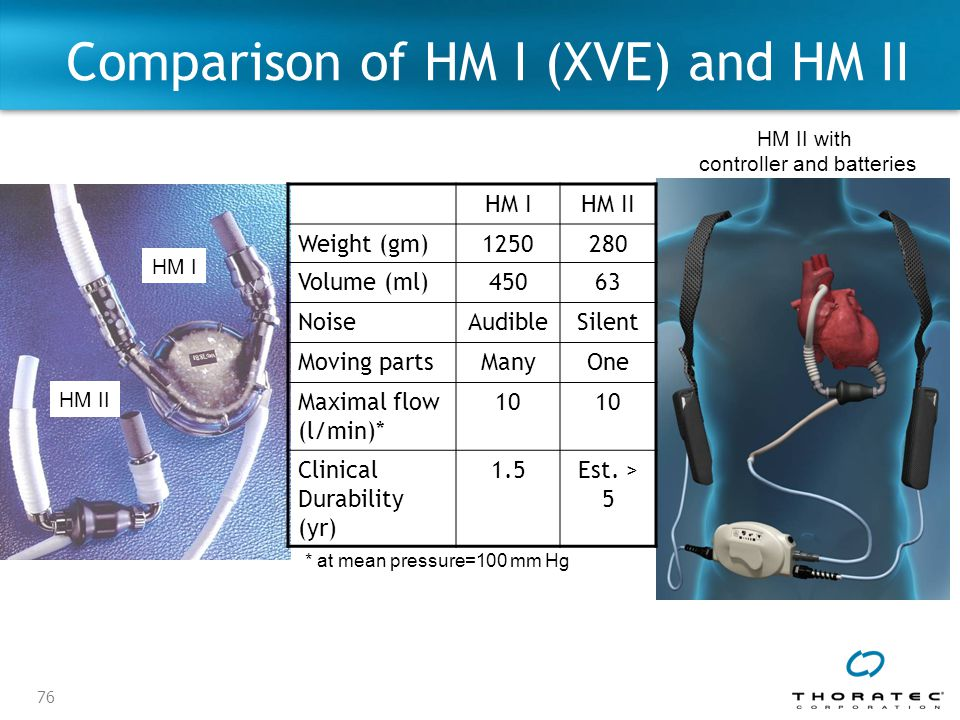 Comparison of HM I (XVE) and HM II