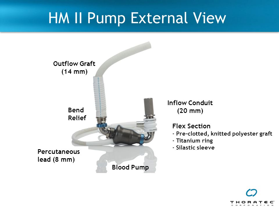 HM II Pump External View