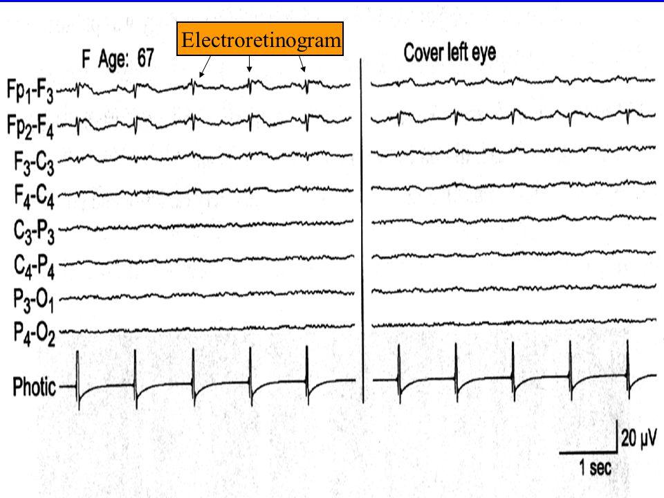 Electroretinogram