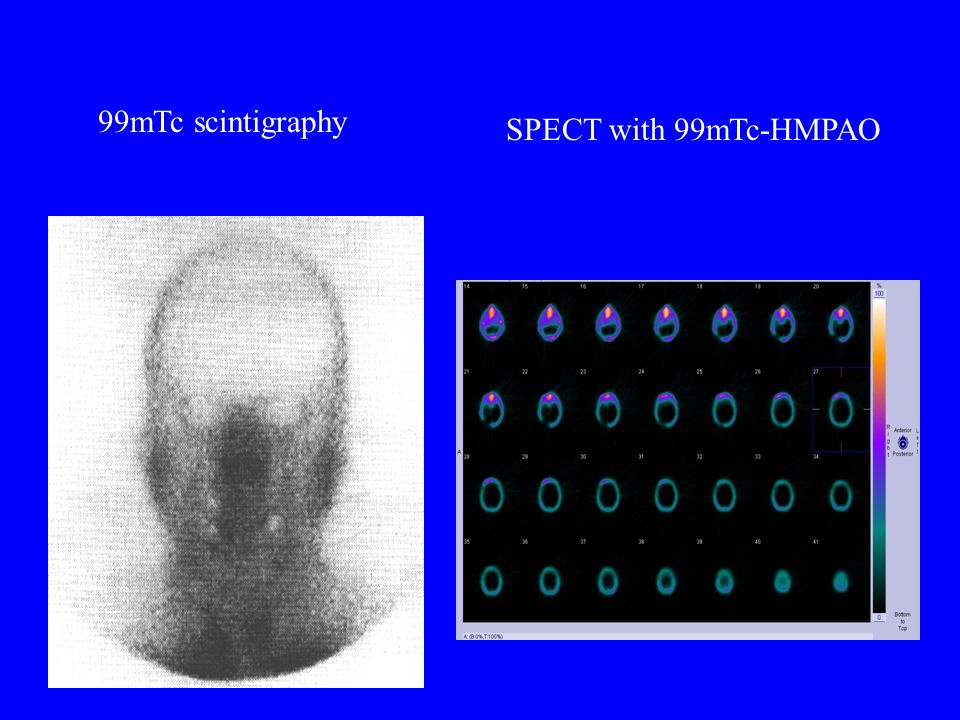 99mTc scintigraphy SPECT with 99mTc-HMPAO