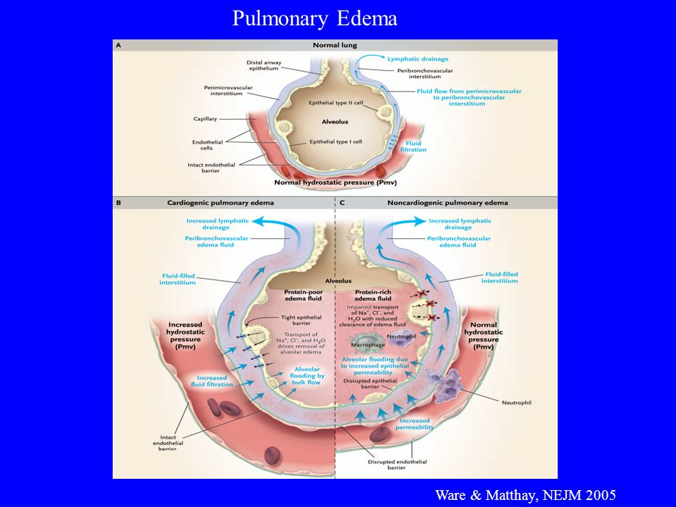 Pulmonary Edema Ware & Matthay, NEJM 2005