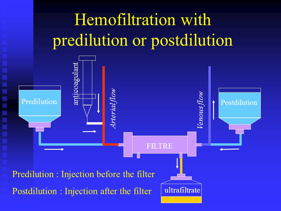 Hemofiltration with predilution or postdilution