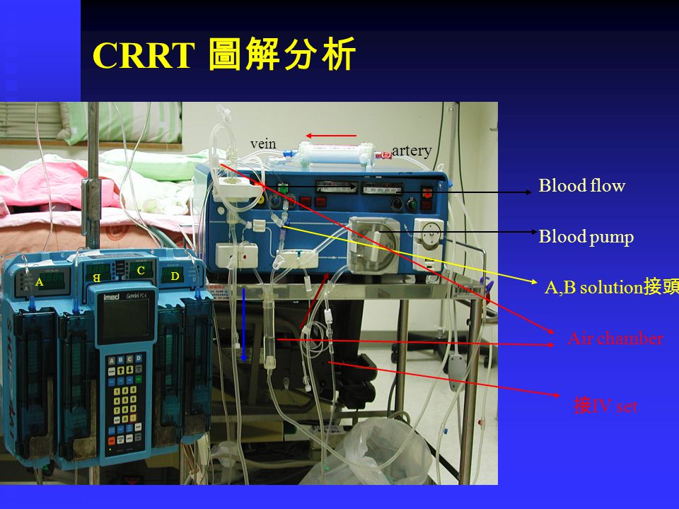 CRRT 圖解分析 Blood flow Blood pump A,B solution接頭 Air chamber 接IV set