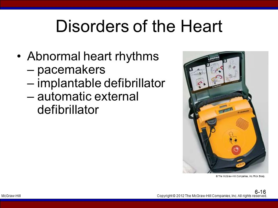 Disorders of the Heart Abnormal heart rhythms – pacemakers