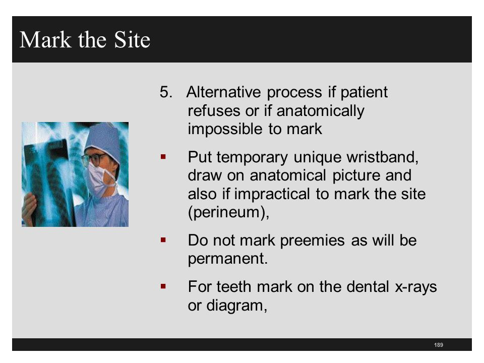 Mark the Site 5. Alternative process if patient refuses or if anatomically impossible to mark.
