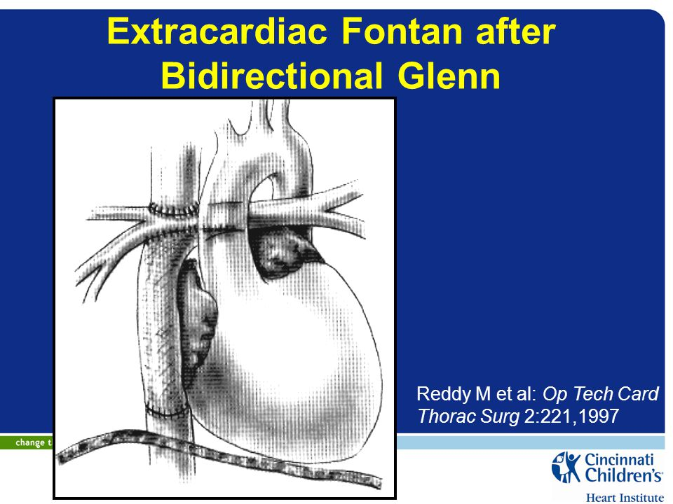 Extracardiac Fontan after Bidirectional Glenn