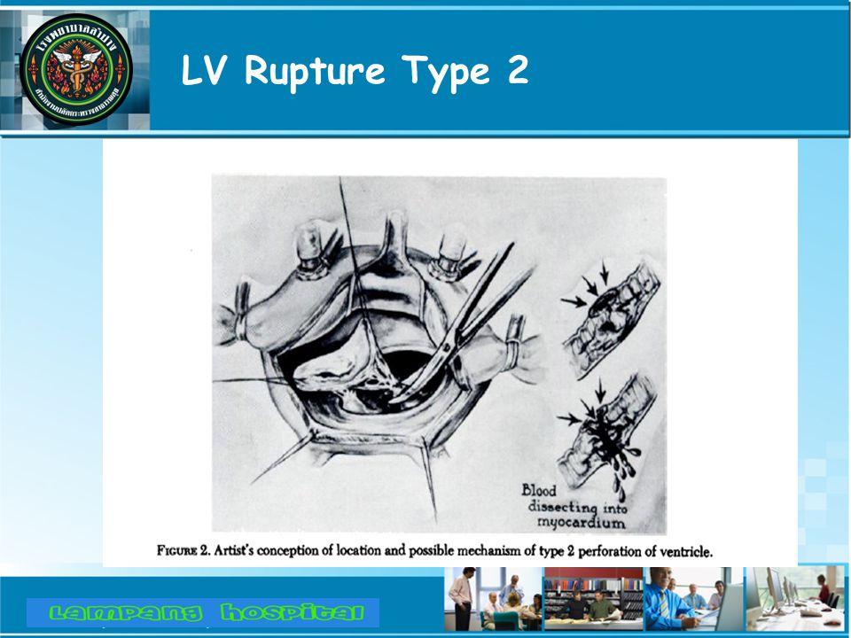LV Rupture Type 2