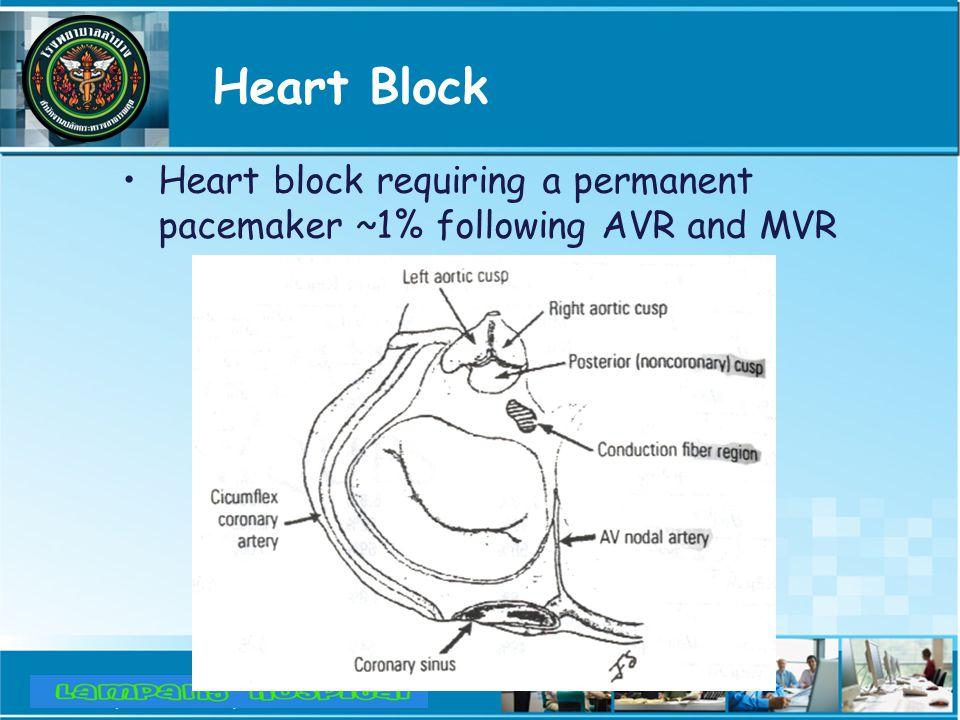 Heart Block Heart block requiring a permanent pacemaker ~1% following AVR and MVR