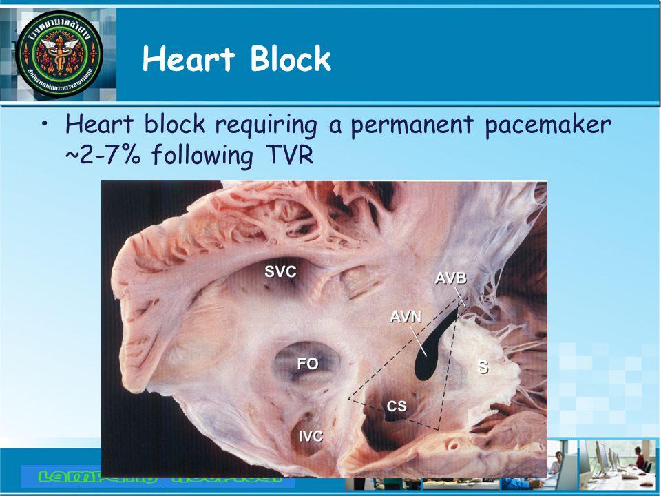 Heart Block Heart block requiring a permanent pacemaker ~2-7% following TVR