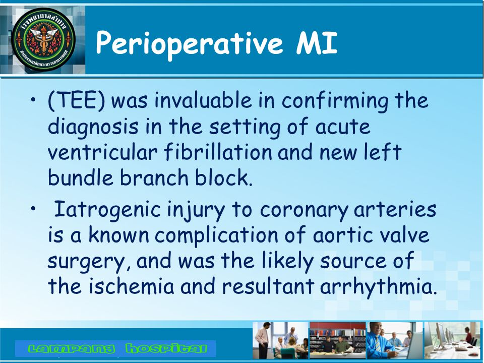 Perioperative MI (TEE) was invaluable in confirming the diagnosis in the setting of acute ventricular fibrillation and new left bundle branch block.