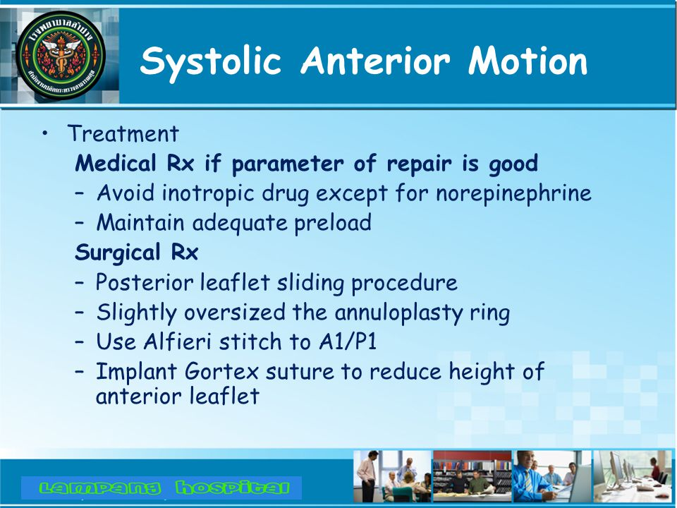 Systolic Anterior Motion