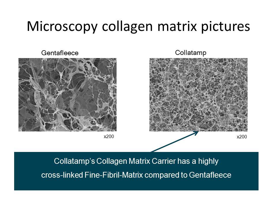 Microscopy collagen matrix pictures