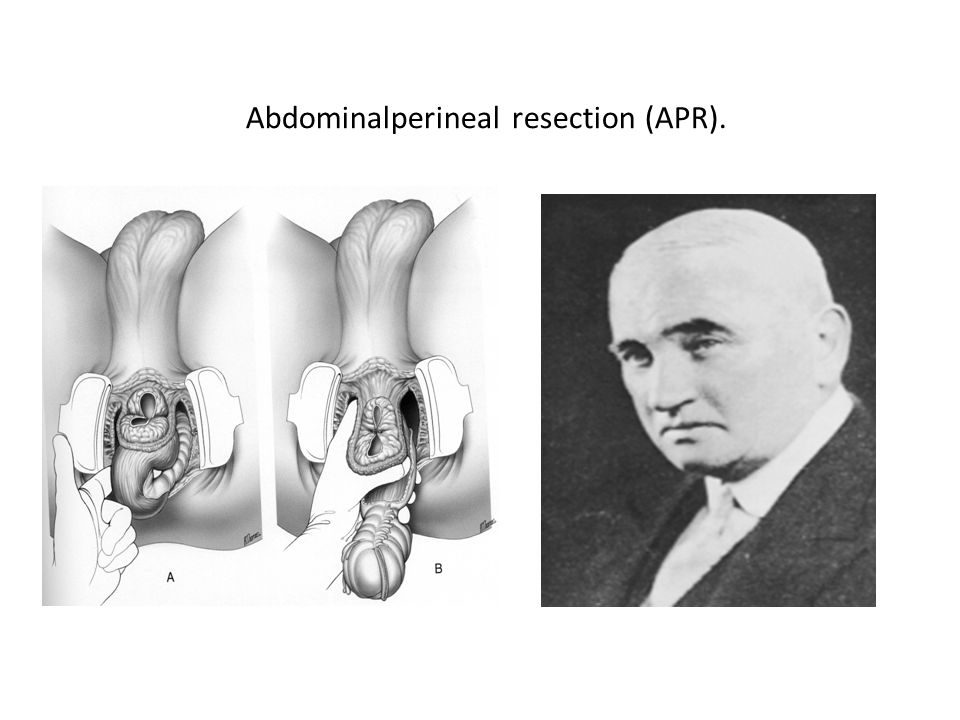 Abdominalperineal resection (APR).