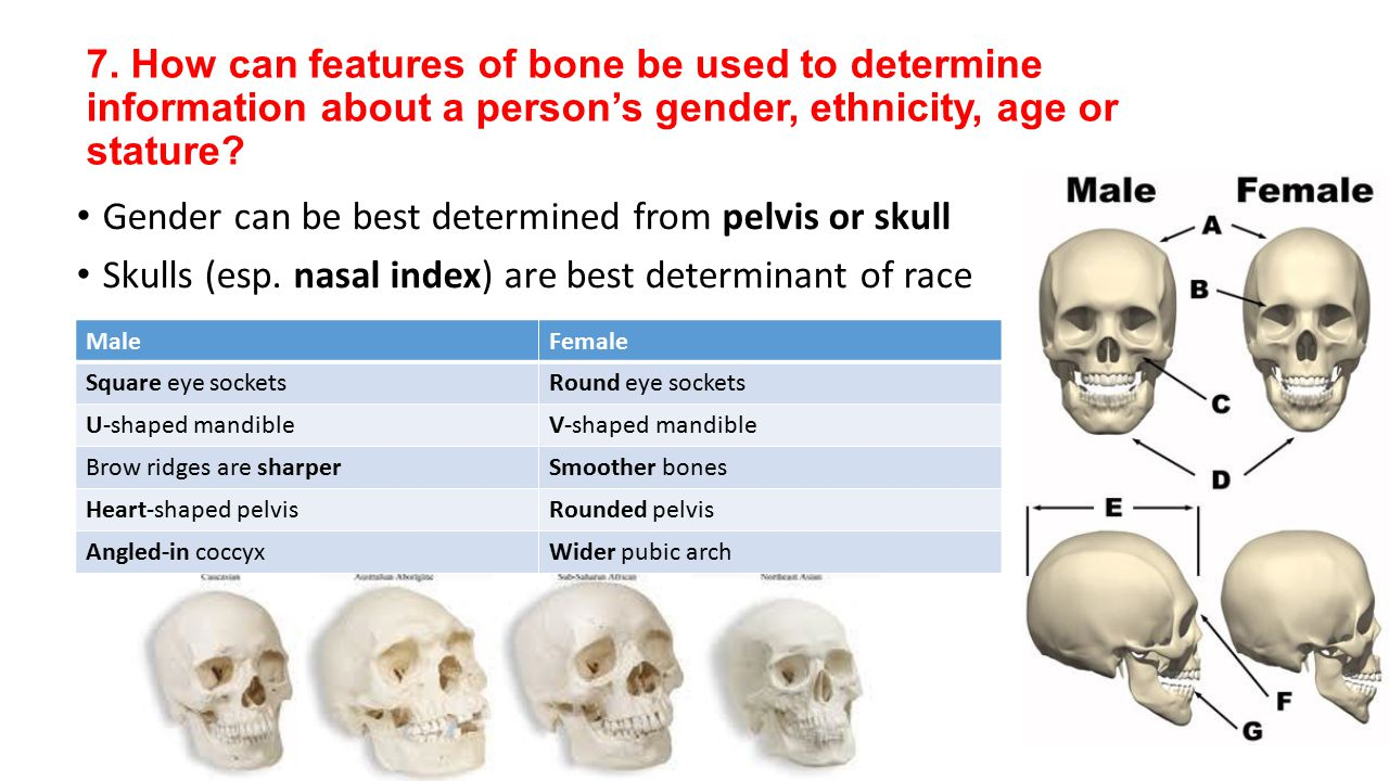 Gender can be best determined from pelvis or skull