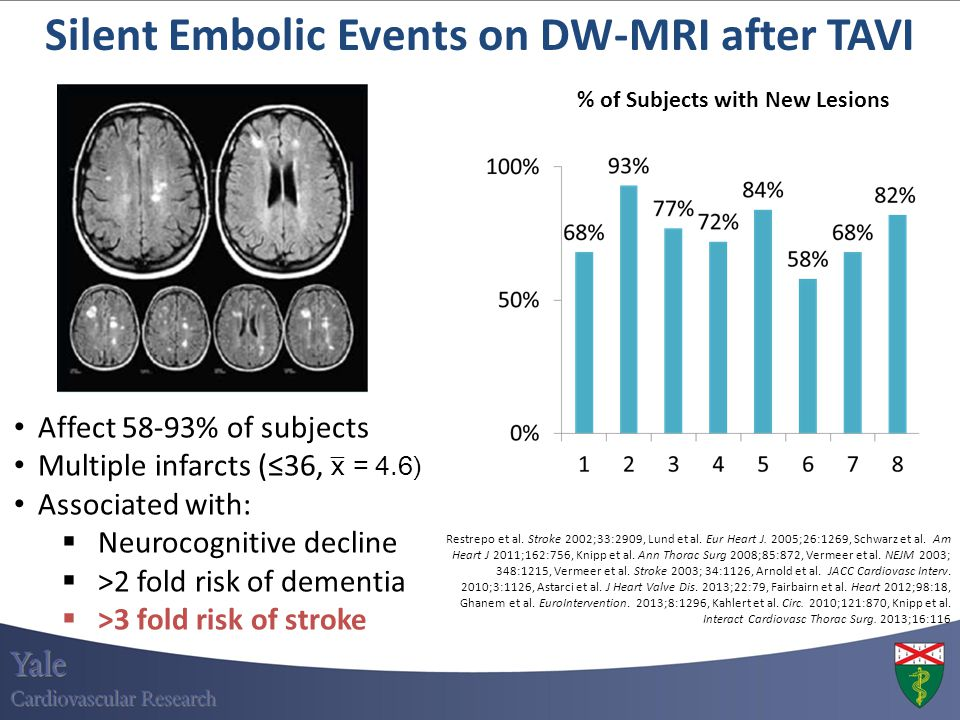 Silent Embolic Events on DW-MRI after TAVI