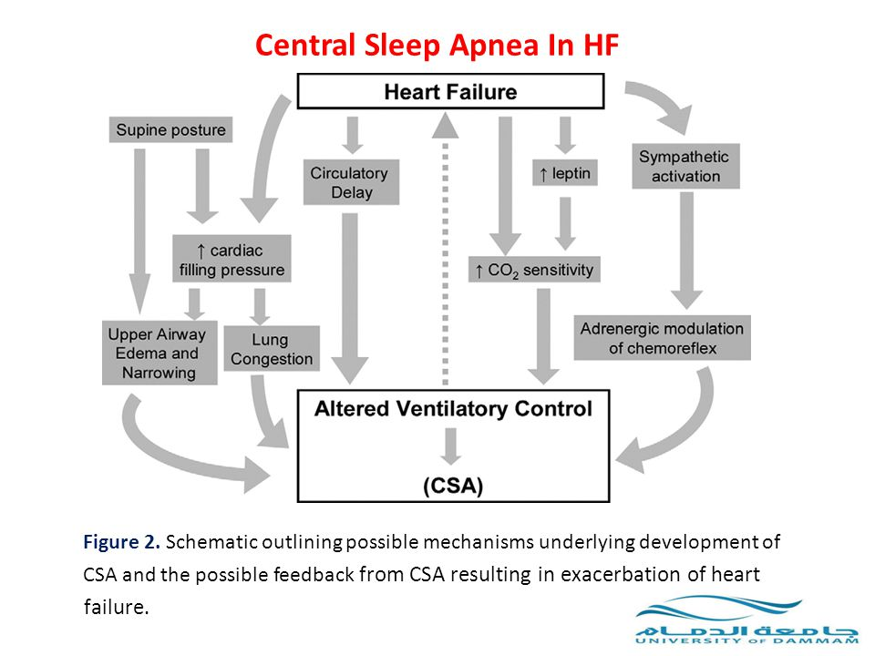 Central Sleep Apnea In HF