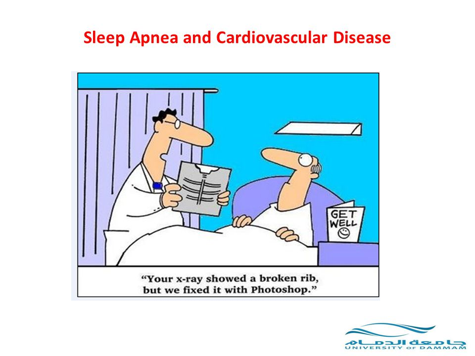 Sleep Apnea and Cardiovascular Disease