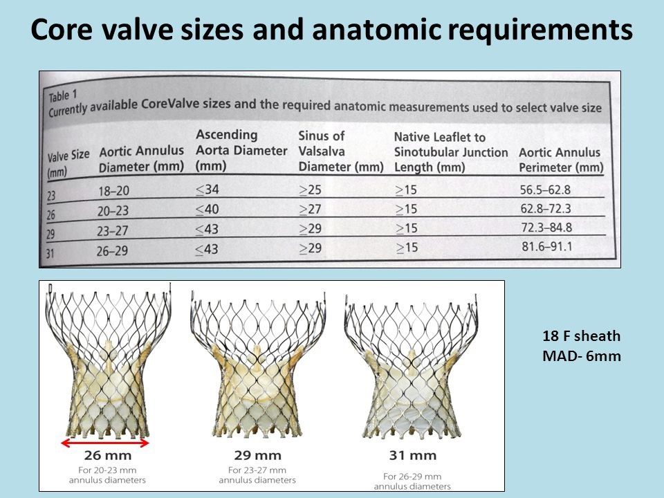 Core valve sizes and anatomic requirements