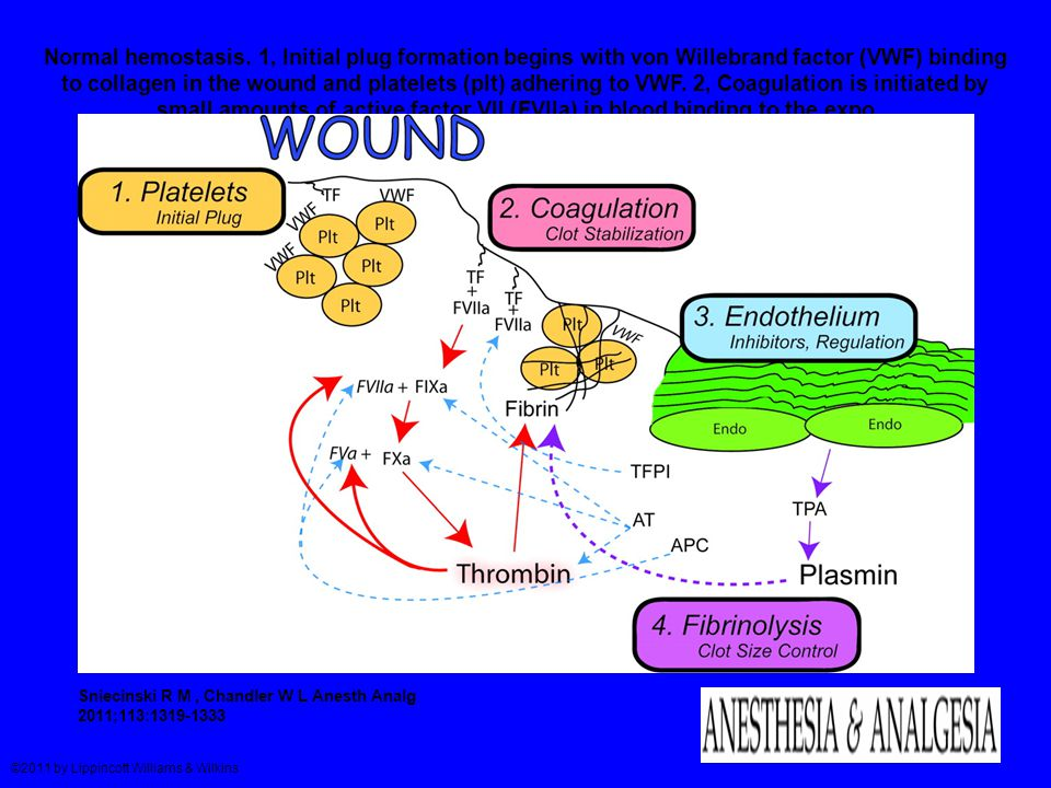 Normal hemostasis. 1, Initial plug formation begins with von Willebrand factor (VWF) binding to collagen in the wound and platelets (plt) adhering to VWF. 2, Coagulation is initiated by small amounts of active factor VII (FVIIa) in blood binding to the expo...