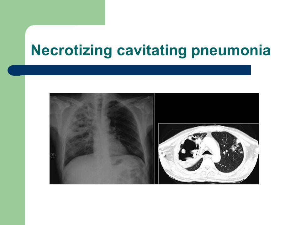 Necrotizing cavitating pneumonia