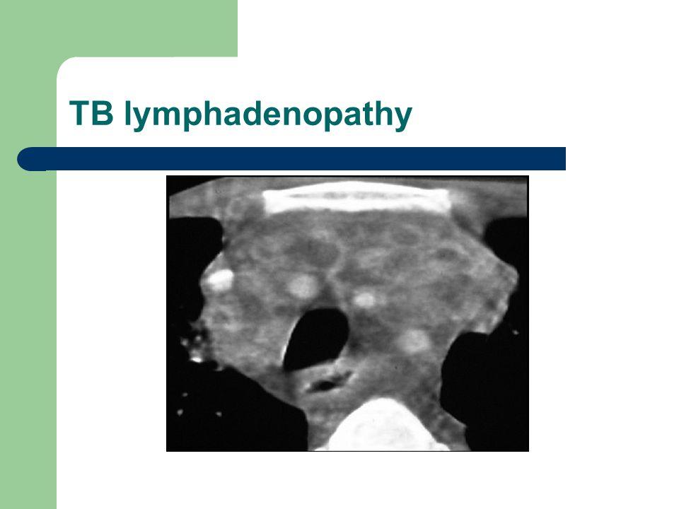 TB lymphadenopathy