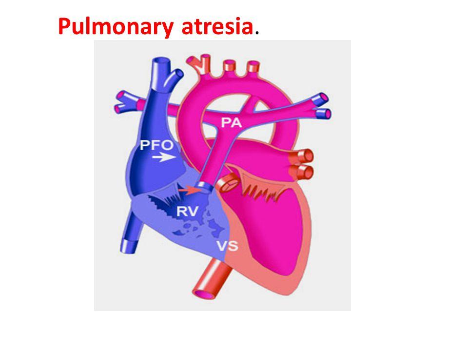 Pulmonary atresia.