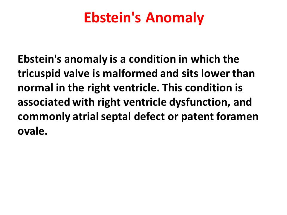 Ebstein s Anomaly