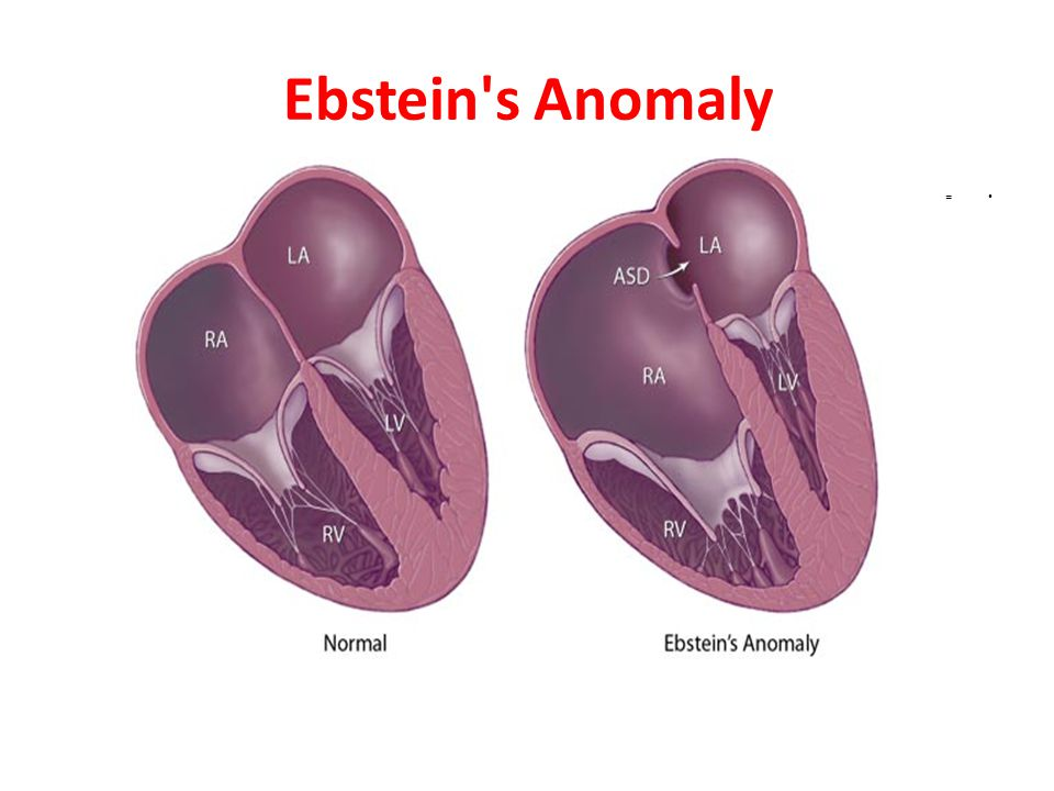 Ebstein s Anomaly =