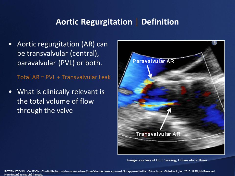 Aortic Regurgitation │ Definition