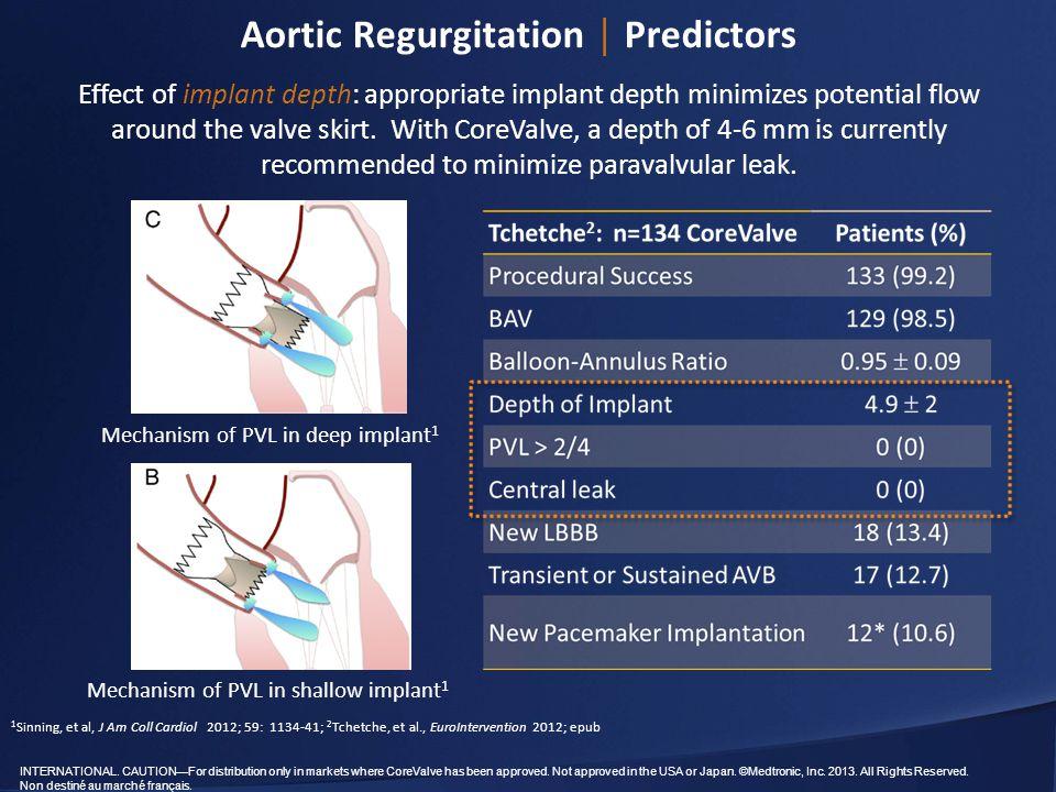 Aortic Regurgitation │ Predictors