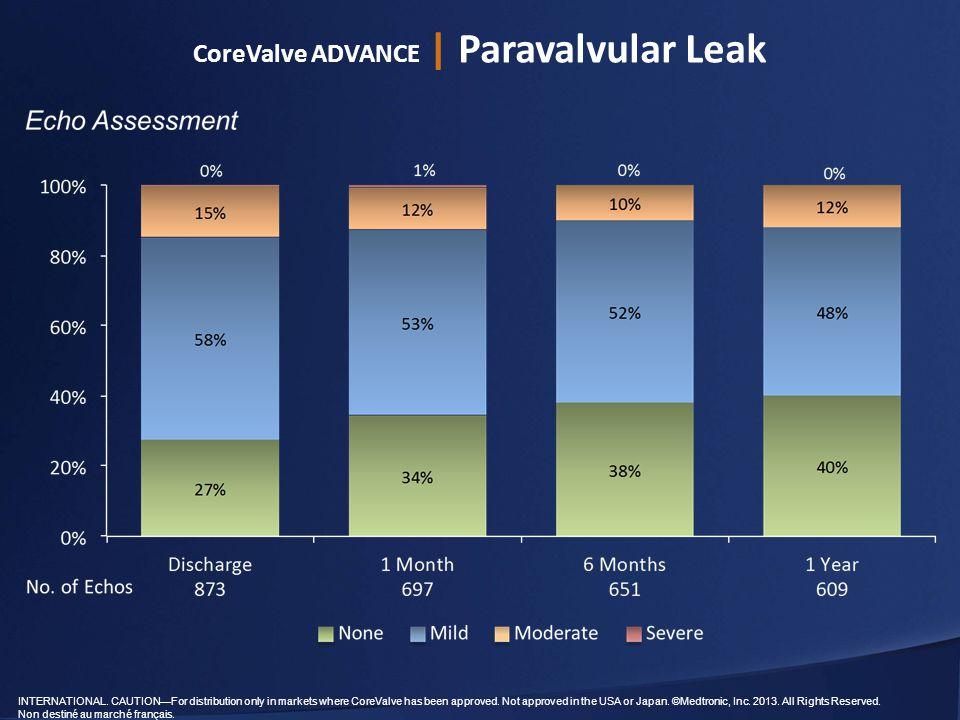CoreValve ADVANCE | Paravalvular Leak