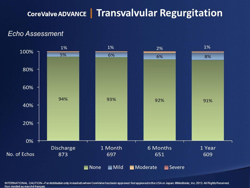CoreValve ADVANCE | Transvalvular Regurgitation