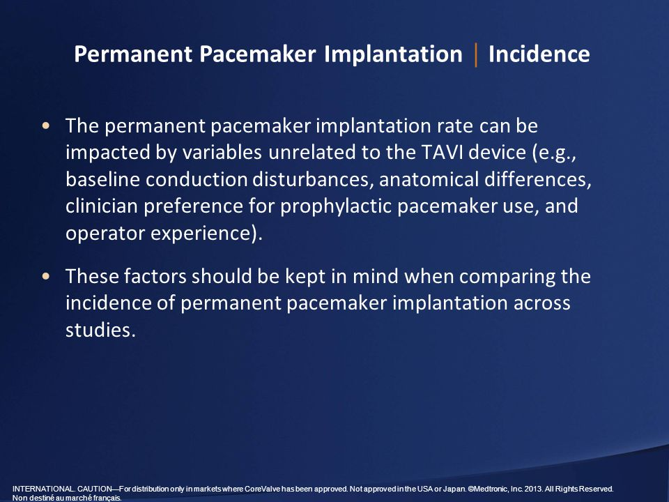 Permanent Pacemaker Implantation │ Incidence