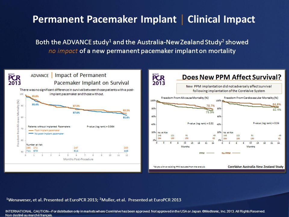 Permanent Pacemaker Implant │ Clinical Impact