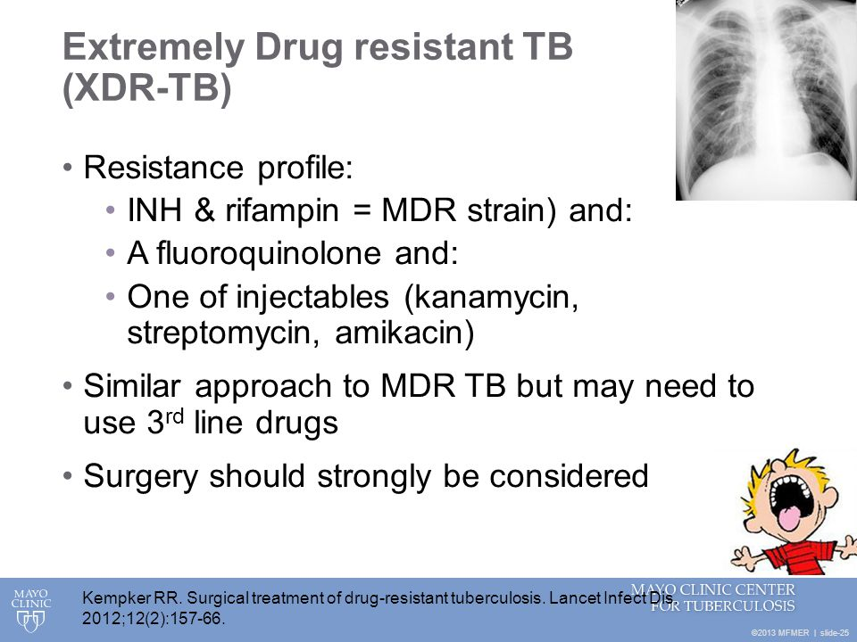Extremely Drug resistant TB (XDR-TB)