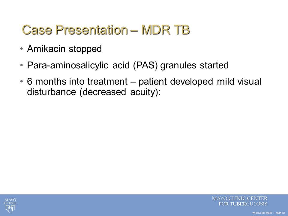 Case Presentation – MDR TB