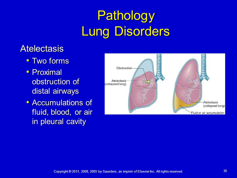 Pathology Lung Disorders