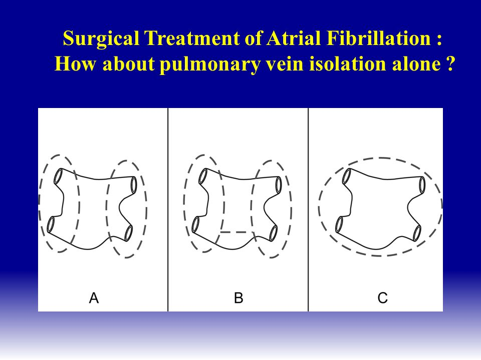 Surgical Treatment of Atrial Fibrillation : How about pulmonary vein isolation alone