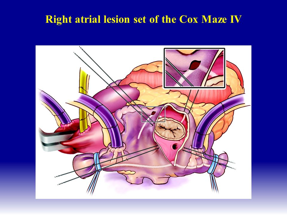 Right atrial lesion set of the Cox Maze IV