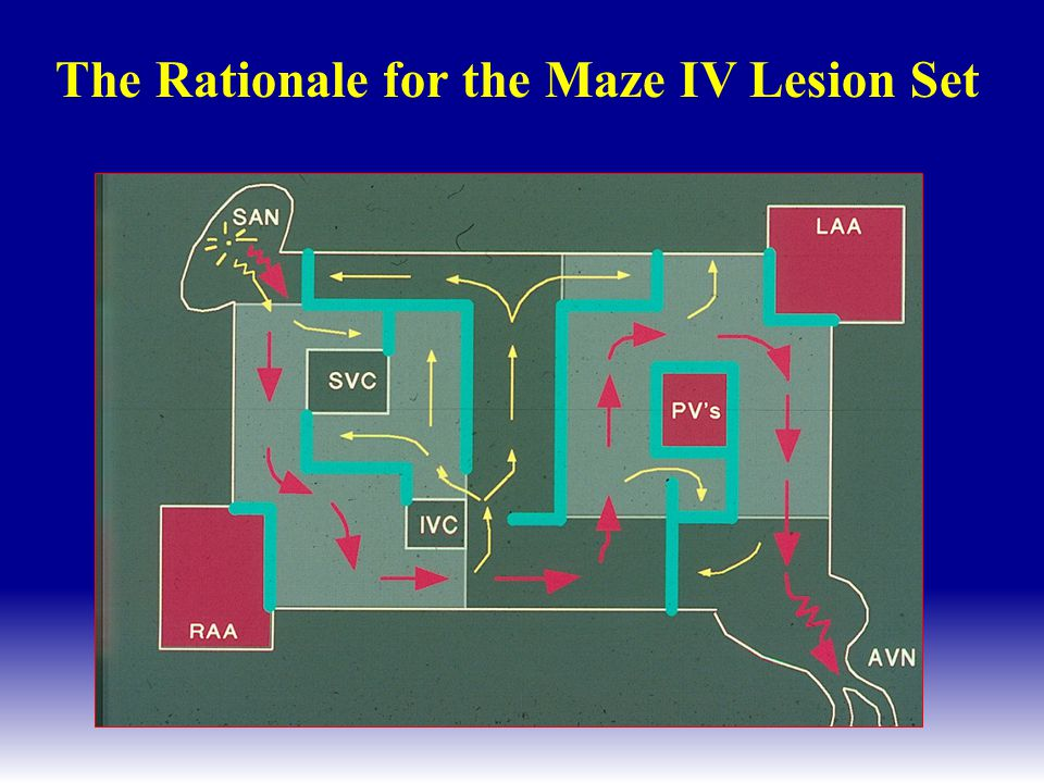 The Rationale for the Maze IV Lesion Set