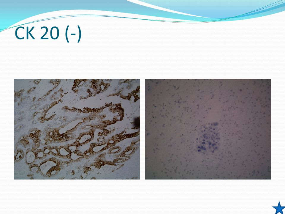 CK 20 (-) Positive for malignant cells, cytomorphologic features consistent with Non-small cell Cancer.