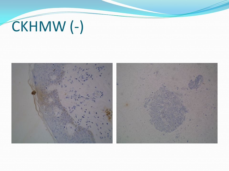 CKHMW (-) Tumor cells was negative for high molecular weight cytokeratin
