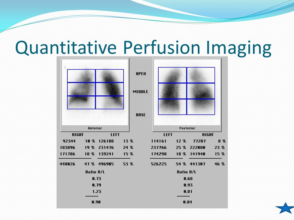 Quantitative Perfusion Imaging