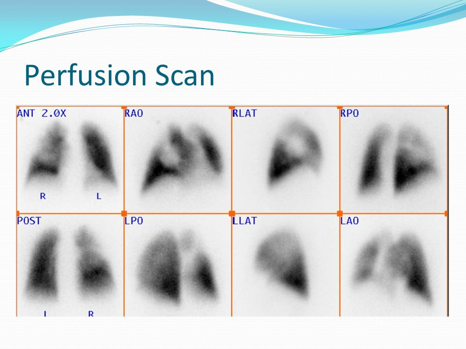 Perfusion Scan