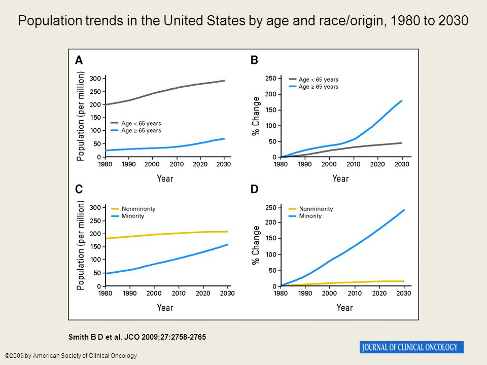 Population trends in the United States by age and race/origin, 1980 to 2030