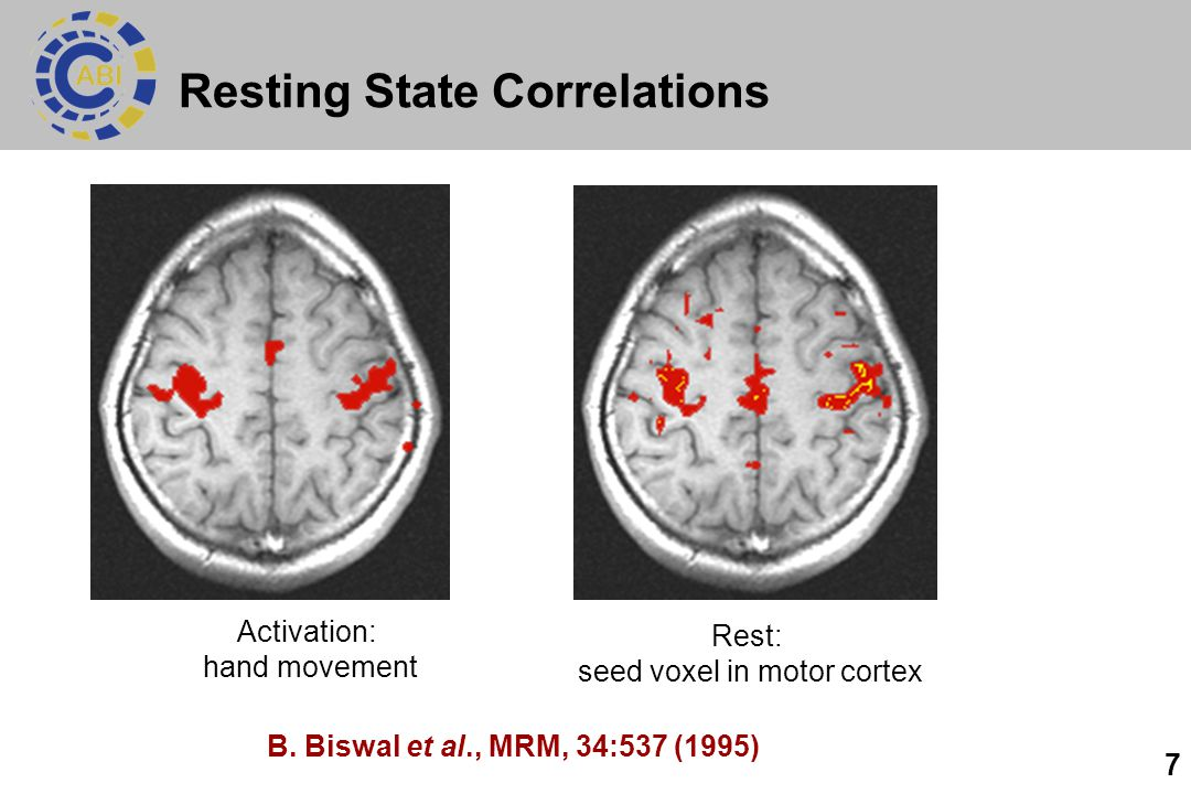 Resting State Correlations