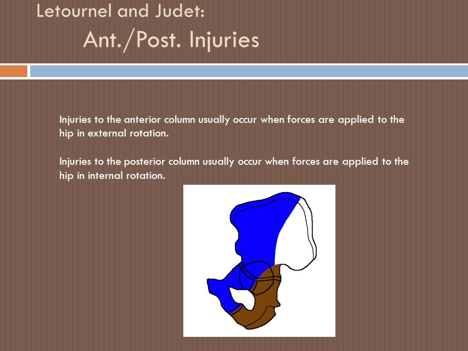 Letournel and Judet: Ant./Post. Injuries