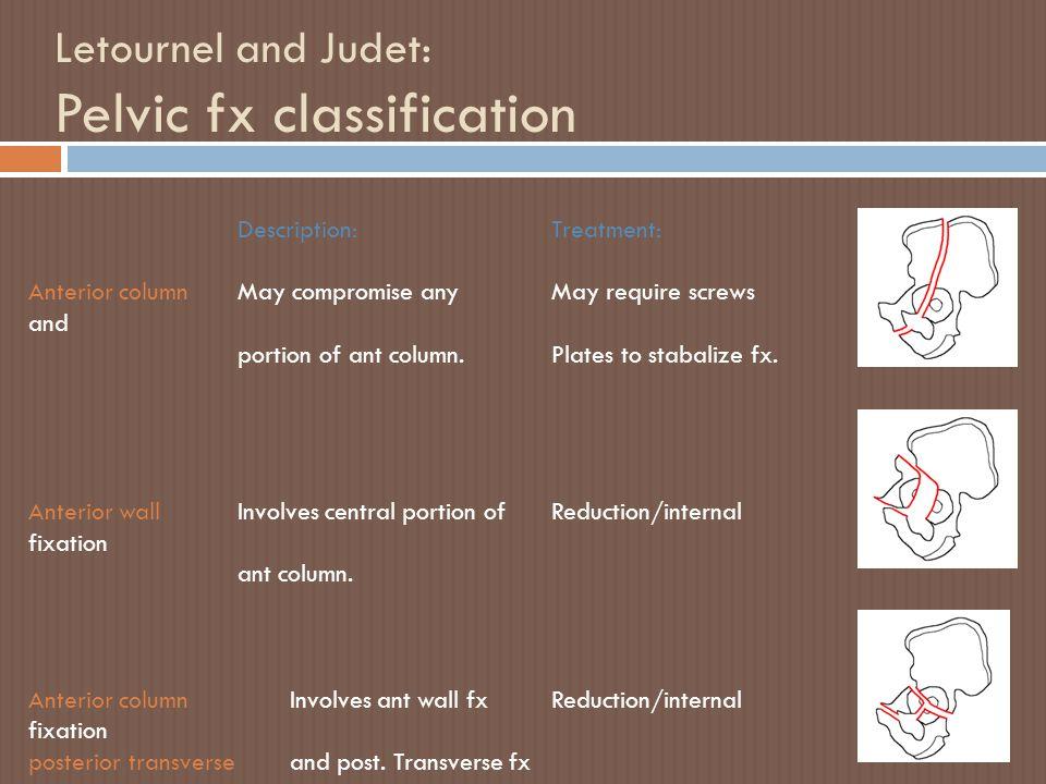 Letournel and Judet: Pelvic fx classification