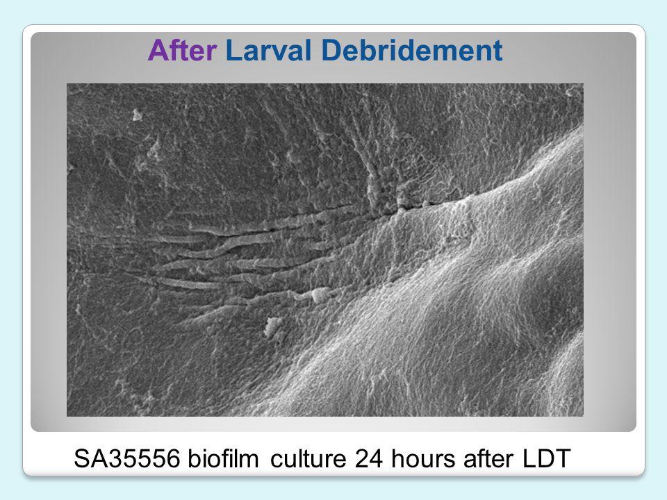 After Larval Debridement