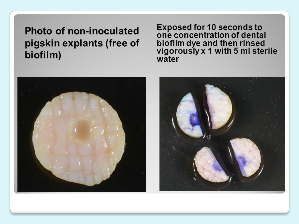 Photo of non-inoculated pigskin explants (free of biofilm)